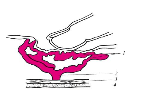 Варикозное расширение вен пищевода 1 степени лечение